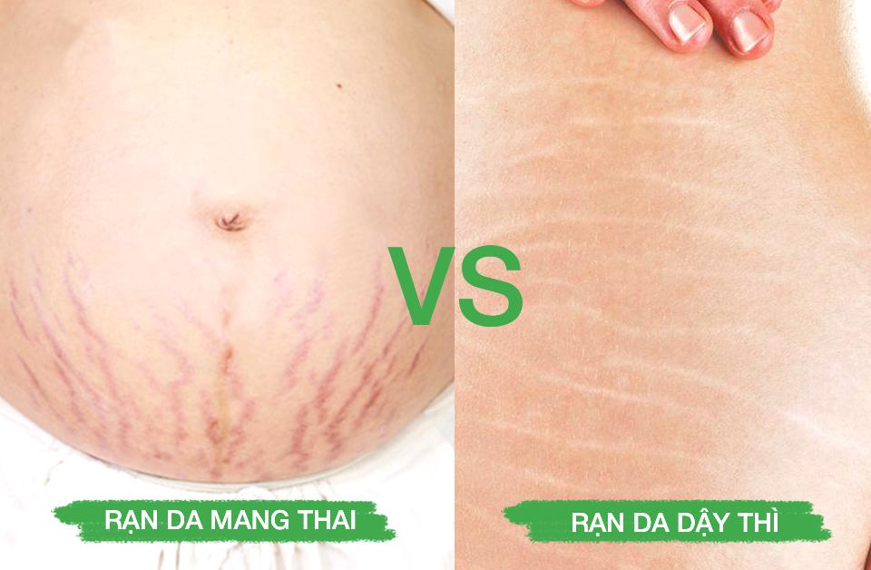 Rạn mang thai và rạn dậy thì có cách nào khắc phục không?