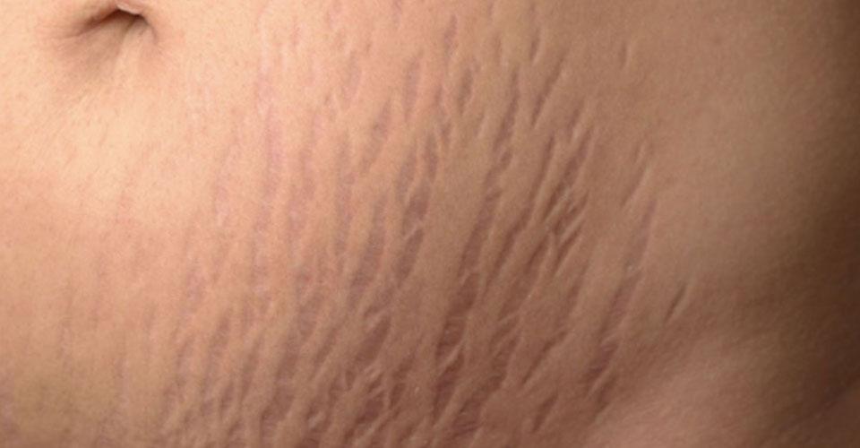 Thời điểm phòng và trị rạn da